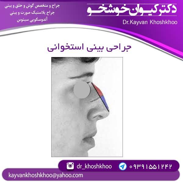 جراحی-بینی-استخوانی