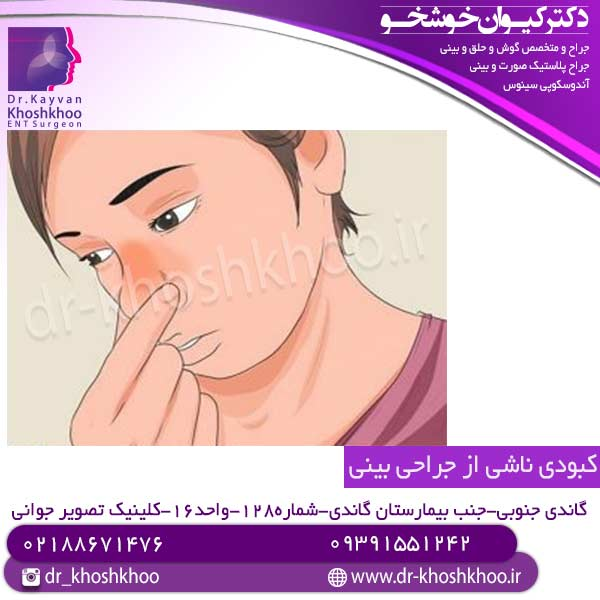 کبودی ناشی از جراحی بینی
