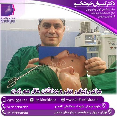جراحی-بینی-10