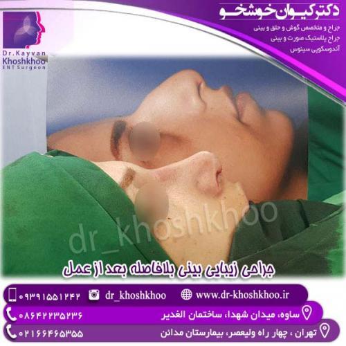جراحی-بینی-12