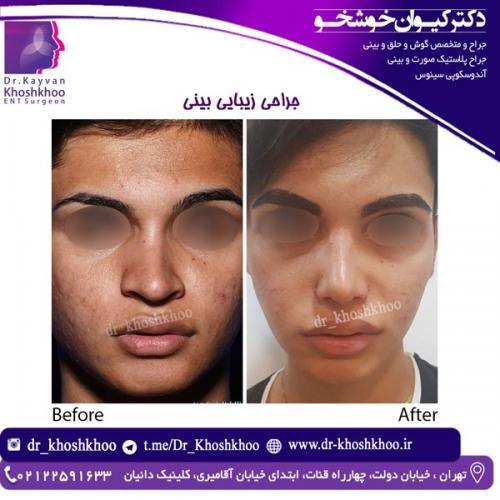 جراحی بینی 18