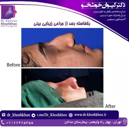 جراحی بینی 19