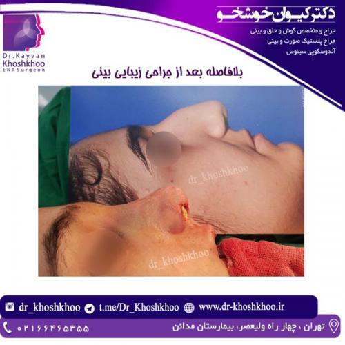 جراحی بینی 20