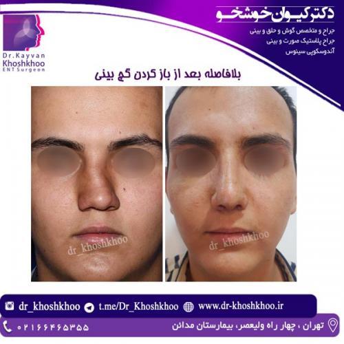 جراحی بینی 22