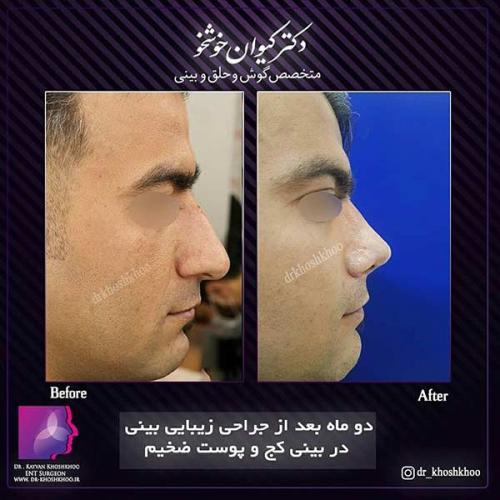 عمل-بینی-تهران-30