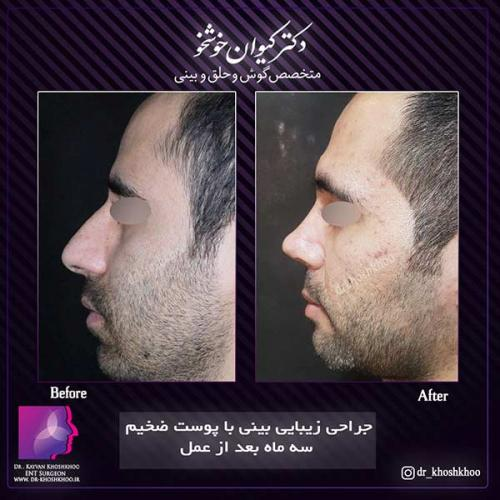 عمل-بینی-تهران-32