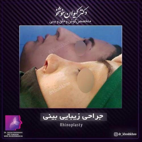 عمل-بینی-تهران-33