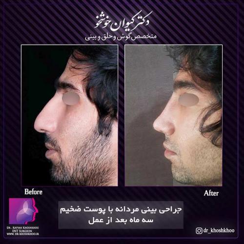 عمل-بینی-تهران-35