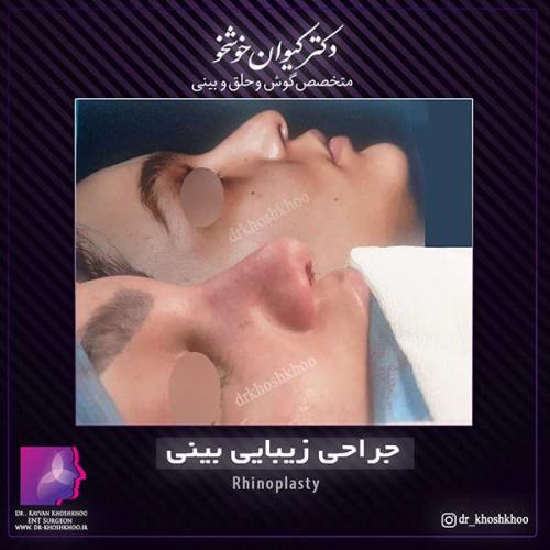 عمل-بینی-تهران-37