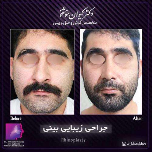 عمل-بینی-تهران-38