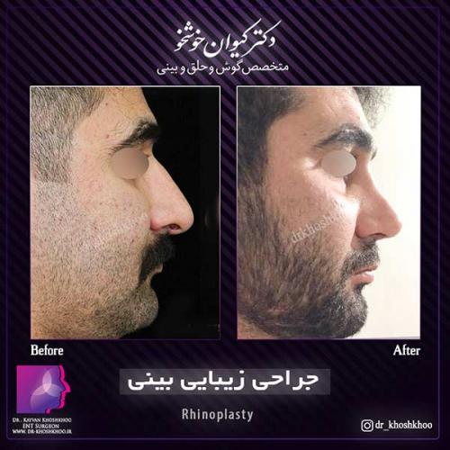 عمل-بینی-تهران-39