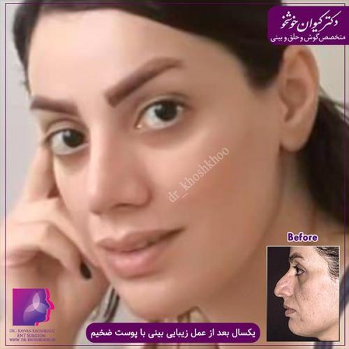 عمل-بینی-تهران-41