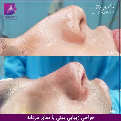 عمل-بینی-تهران-43