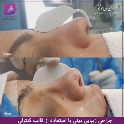 عمل-بینی-تهران-44