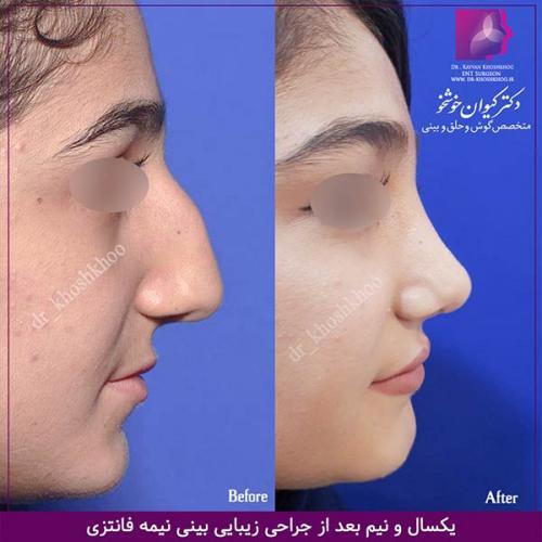عمل-بینی-تهران-45