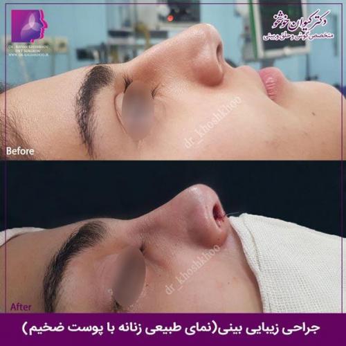 عمل بینی تهران 100
