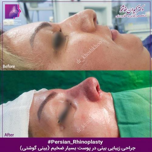 عمل بینی تهران 106