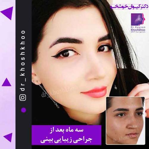 عمل بینی تهران 11