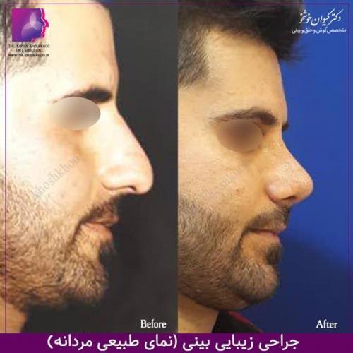 عمل بینی تهران 113