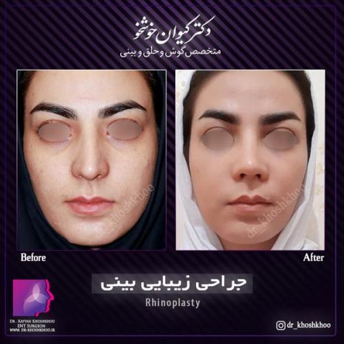 عمل بینی تهران 18