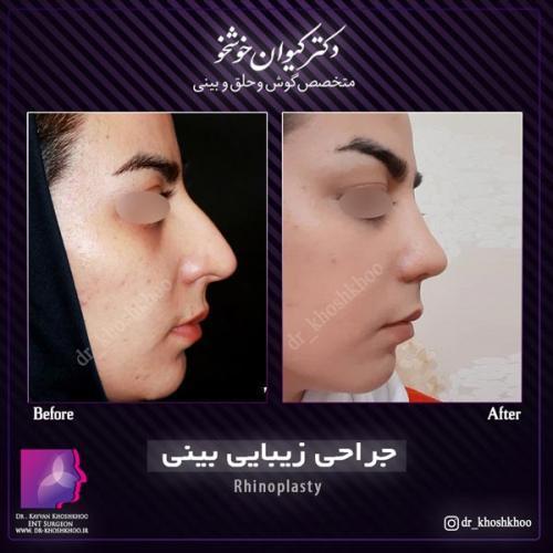 عمل بینی تهران 19