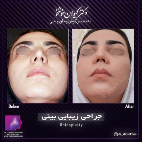 عمل بینی تهران 21