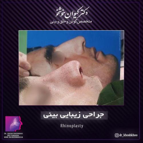 عمل بینی تهران 22