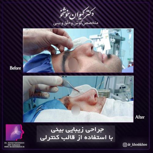 عمل بینی تهران 23