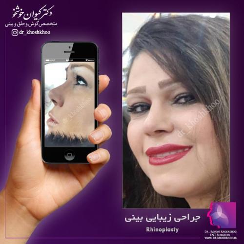 عمل بینی تهران 24