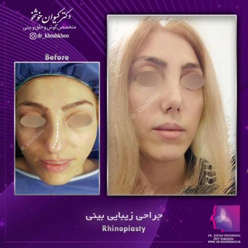 عمل بینی تهران 28