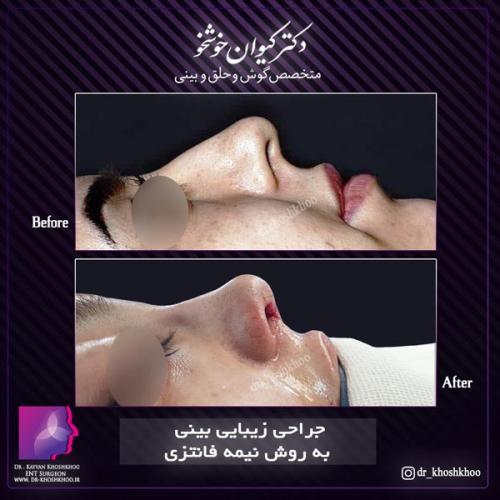 عمل بینی تهران 29