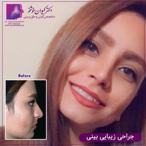 عمل بینی تهران 50
