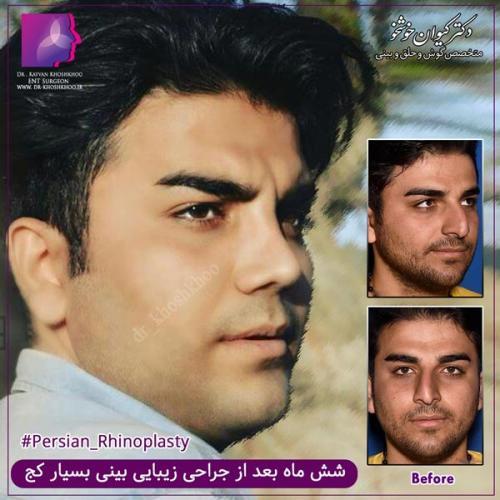 عمل بینی تهران 51