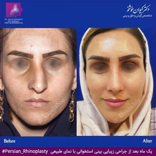 عمل بینی تهران 52