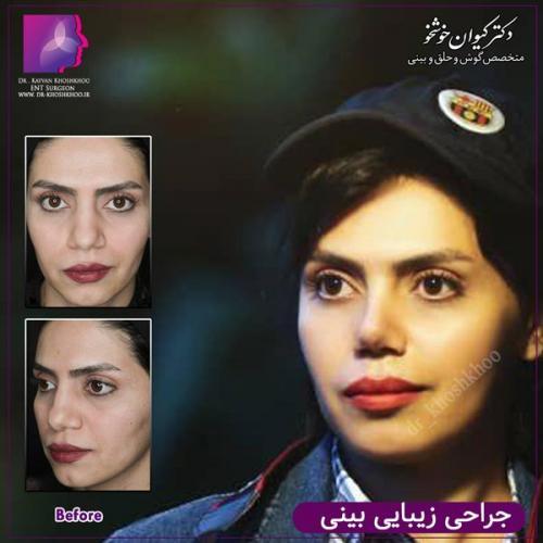 عمل بینی تهران 54