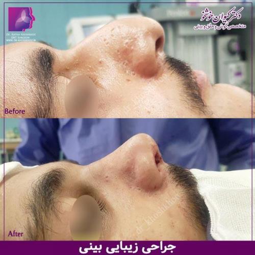 عمل بینی تهران 60