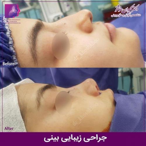 عمل بینی تهران 64