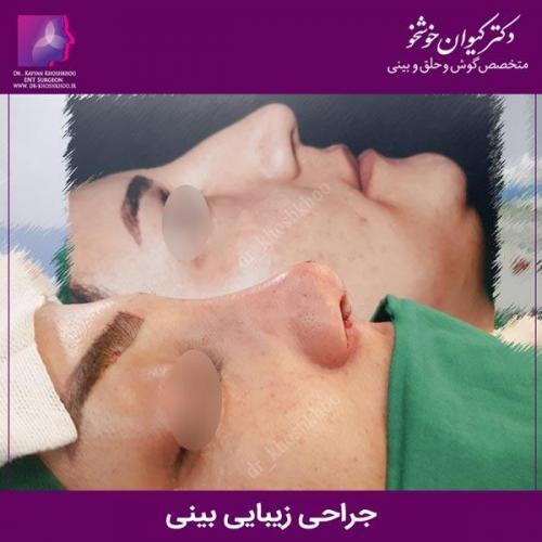 عمل بینی تهران 82