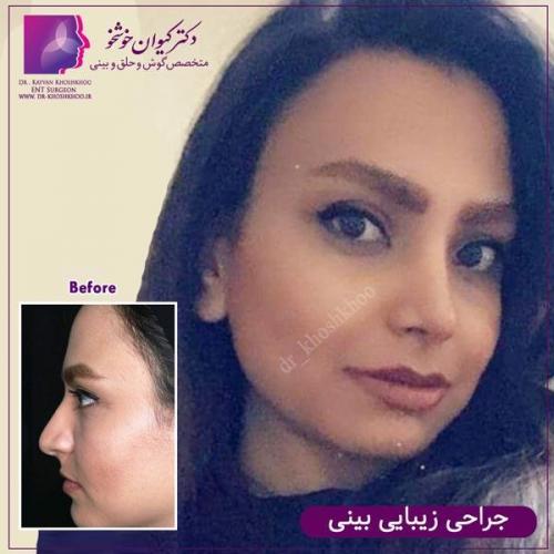 عمل بینی تهران 85