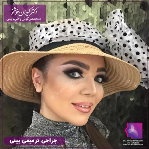 عمل بینی تهران 92