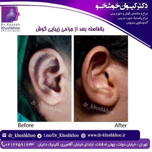 جراحی-گوش