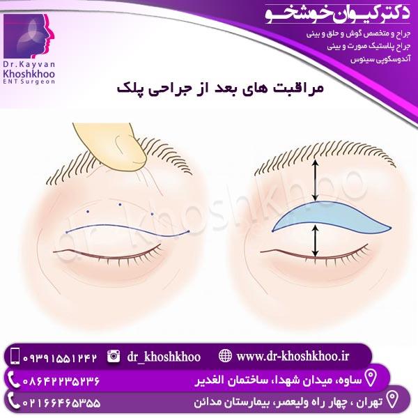 مراقبت های بعد از جراحی پلک